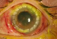 weird eye disease